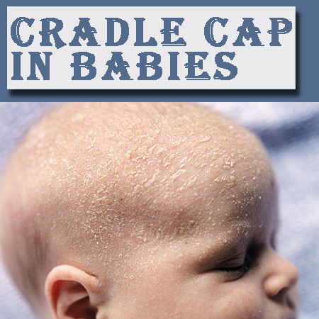 Dealing With Cradle Cap In Babies