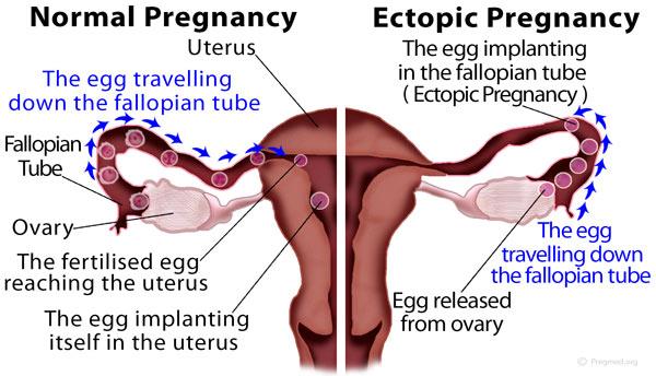 Ectopic-Pregnancy vs normal ones