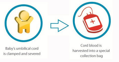 shaklee-cord-blood-cell-banking-delivery-collect