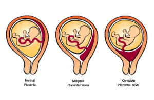 shaklee-placenta-previa-types