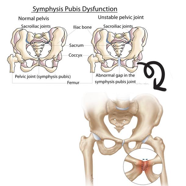 shaklee-symphysis-pubis-dysfunction-pelvic-bone