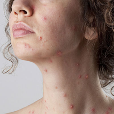 Chickenpox Scar Disappear Within A Month, Help Win A Husband Heart