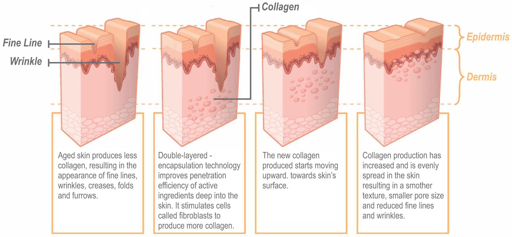 collagen-production