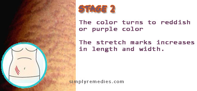 shaklee-stretch-marks-stage-2-during-pregnancy