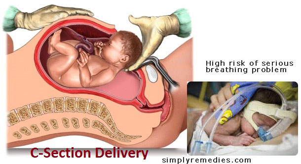 c-section-high-risk-of-breathing-problem