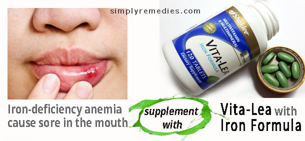 shaklee-mouth-ulcer-vitalea-iron-deficiency-anemia