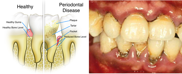 pregnancy-periodontal-disease