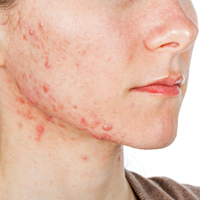 Eczema-safe diet to promote skin repair