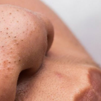 7 Effective remedies to remove blackheads