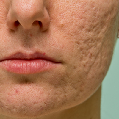 Way to remove acne scars fast in 13 days